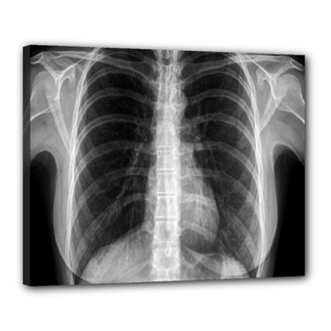 X Ray Canvas 20  X 16  by Valentinaart