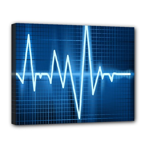 Heart Monitoring Rate Line Waves Wave Chevron Blue Canvas 14  X 11  by Mariart
