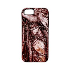 The Bleeding Tree Apple Iphone 5 Classic Hardshell Case (pc+silicone) by InsanityExpressed