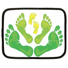 Soles Feet Green Yellow Family Netbook Case (large) by Alisyart
