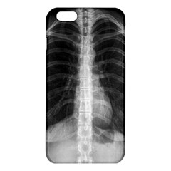 X Ray Iphone 6 Plus/6s Plus Tpu Case by Valentinaart
