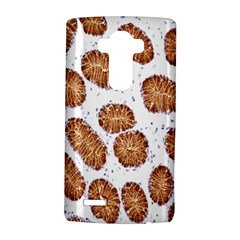 Formalin Paraffin Human Stomach Stained Bacteria Brown Lg G4 Hardshell Case by Mariart