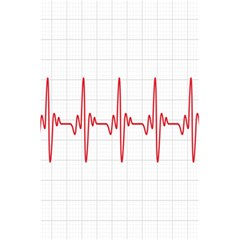 Cardiogram Vary Heart Rate Perform Line Red Plaid Wave Waves Chevron 5 5  X 8 5  Notebooks by Mariart
