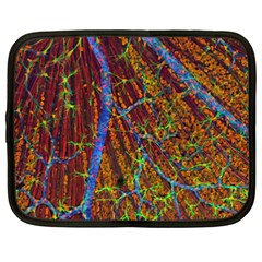 Neurobiology Netbook Case (xxl)  by BangZart