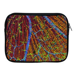 Neurobiology Apple Ipad 2/3/4 Zipper Cases by BangZart