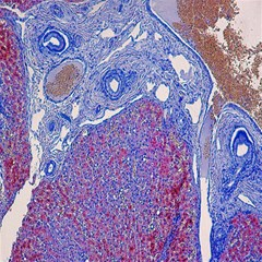 Histology Inc Histo Logistics Incorporated Human Liver Rhodanine Stain Copper Canvas 16  X 16   by Mariart