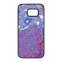 Histology Inc Histo Logistics Incorporated Human Liver Rhodanine Stain Copper Samsung Galaxy S7 Edge Black Seamless Case by Mariart