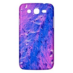 The Luxol Fast Blue Myelin Stain Samsung Galaxy Mega 5 8 I9152 Hardshell Case  by Mariart